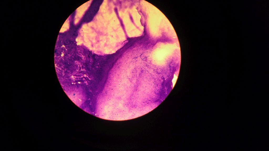 Gefärbte Nervenzelle unter dem Mikroskop